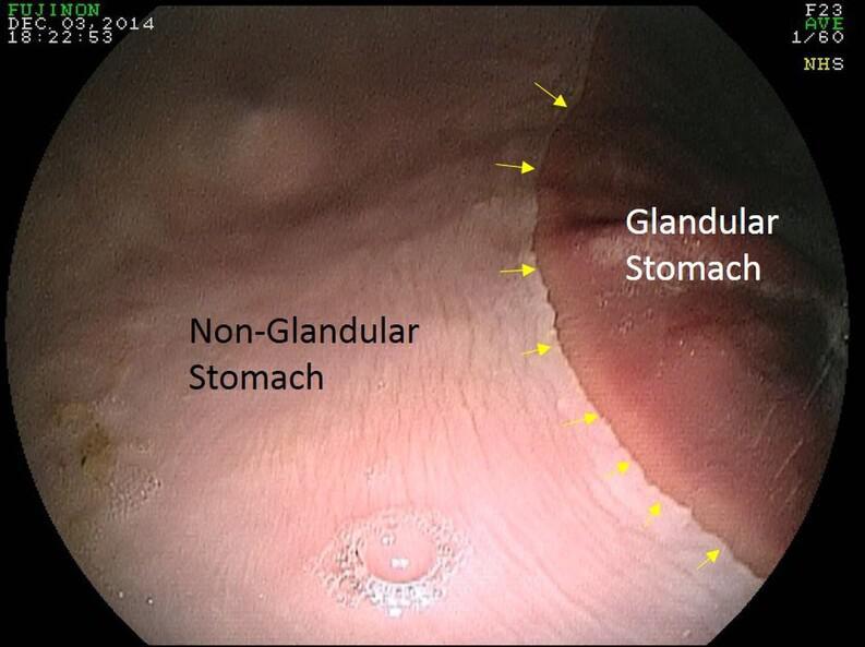 ulcers2.jpg